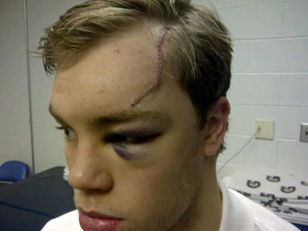 Taylor Hall Head Cut Stitches